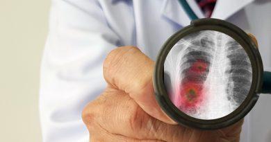 За минувшие сутки было зарегистрировано 22 новых случаев заражения коронавирусом