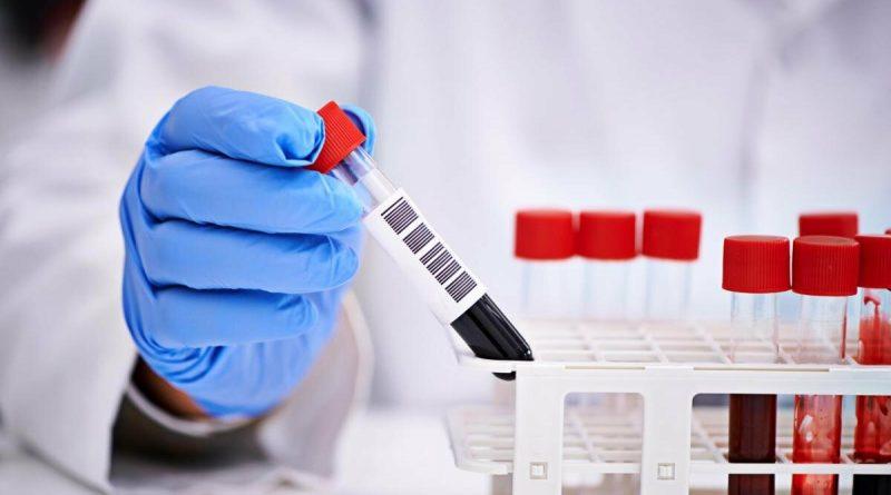 Foto В Молдове подтвердили 55 новых случаев заболевания COVID-19, из которых два новых случая из Бэлць 1 29.07.2021
