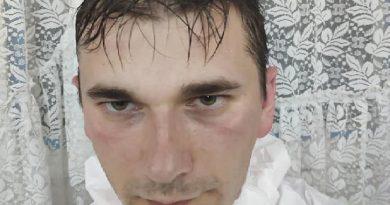 /FOTO/ Cum arată un medic din Bălți după o tură în secția de COVID-19